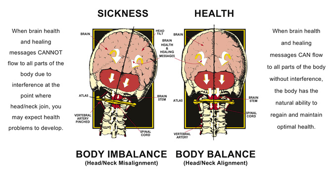 Perkins Family Wellness Upper Cervical Chiropractic Care