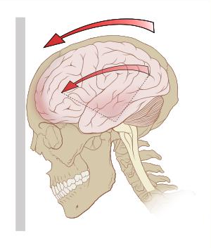 Concussion, Head Trauma, Headache, Head Pain, Post-Concussion Syndrome, Post Concussion Syndrome, Post - Concussion Syndrome