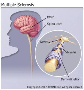 Multiple Sclerosis, MS, Extreme tiredness, Dizzy, Dizziness, Weak, Fog, Sclerosis